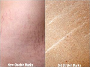 Can Tretinion and Hyaluronic Acid Fade Stretch Marks - beautysparkreview.com