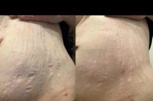 Dermaroller for stretch marks