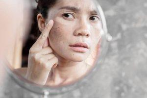 Dermaroller benefits